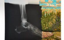 Röntgenbroderi från Matthew Cox
