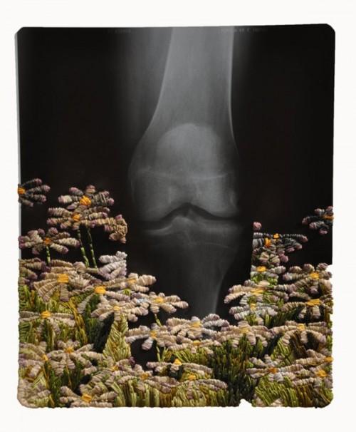 Knee and daisies av Matthew Cox. Broderi på röntgenplåt. (Foto Matthew Cox)